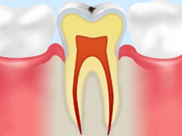 【C0】ごく初期の虫歯
