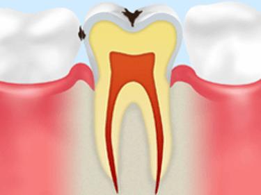 【C1】エナメル質の虫歯