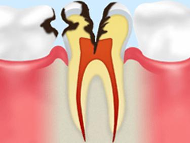 【C2】象牙質の虫歯