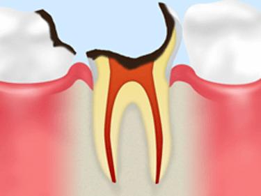 【C3】神経に達した虫歯