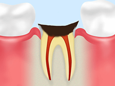【C4】歯根に達した虫歯